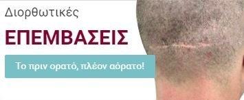 Μεταμόσχευση Μαλλιών FUE - Διορθωτικές Επεμβάσεις