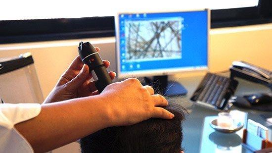 Οι εξειδικευμένοι γιατροί της Bergmann Kord ενημερώνουν : Οι βασικές παράμετροι της Μεταμόσχευσης Μαλλιών FUE
