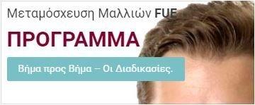 Προγραμματισμός Διαδικασιών - Μεταμόσχευση Μαλλιών FUE