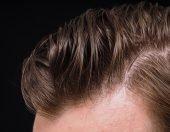 Μεταμοσχευση μαλλιων FUE