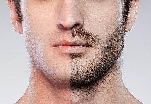 Εμφύτευση Γενιών - Μεταμόσχευση Τριχών FUE