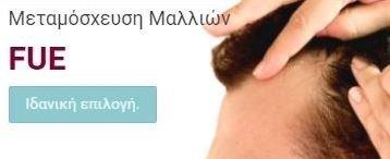 Μεταμόσχευση Μαλλιών FUE - Ιδανική Επιλογή