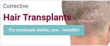 Corrective Hair Transplants Banner
