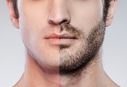 FUE Hair Transplant - Facial Hair Implantation - Bergmann Kord Hair Clinic