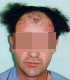 FUE Corrective Hair Transplant 1 - Bergmann Kord