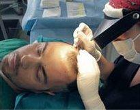 FUE Hair Transplant Session - Bergmann Kord Hair Clinic