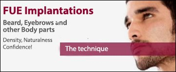 FUE Implantations Banner