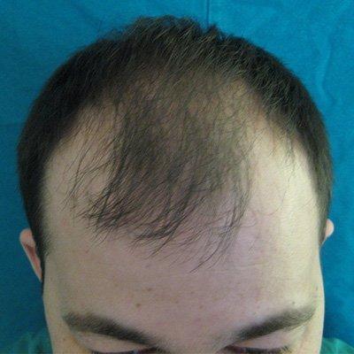 Μεταμόσχευση Μαλλιών FUE - Αποτελέσματα - Περιστατικό 1 (Πριν) - Index