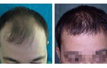 Μεταμόσχευση Μαλλιών FUE - Αποτελέσματα - Πριν & Μετά (Περιστατικό 1) - Bergmann Kord