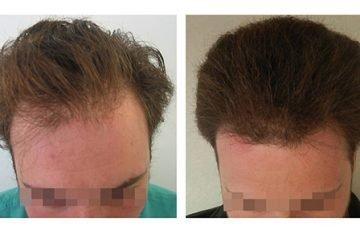 Μεταμόσχευση Μαλλιών FUE - Αποτελέσματα - Πριν & Μετά (Περιστατικό 2) - Bergmann Kord