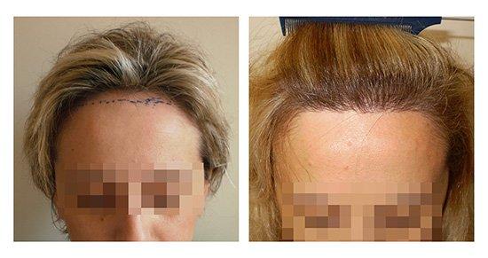 Μεταμόσχευση Μαλλιών FUE - Αποτελέσματα - Πριν & Μετά (Περιστατικό 3) - Bergmann Kord