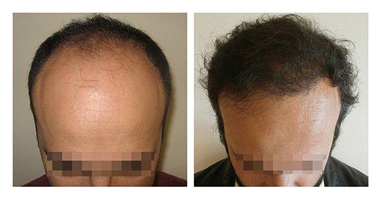 Μεταμόσχευση Μαλλιών FUE - Αποτελέσματα - Πριν & Μετά (Περιστατικό 4) - Bergmann Kord