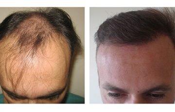 Μεταμόσχευση Μαλλιών FUE - Αποτελέσματα - Πριν & Μετά (Περιστατικό 5) - Bergmann Kord