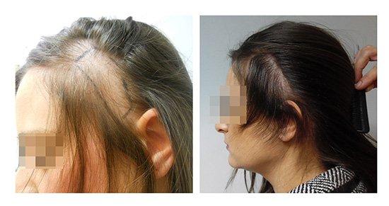 Μεταμόσχευση Μαλλιών FUE - Αποτελέσματα - Πριν & Μετά (Περιστατικό 6) - Bergmann Kord