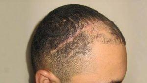 FUE Hair Transplant - Scar Hair Restoration - Bergmann Kord Hair Clinic