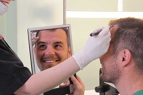 Μεταμόσχευση μαλλιών FUE (Follicular Unit Extraction) : Τα μαλλιά σας σε «πρώτο πλάνο» !