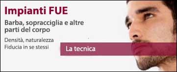 Impianti di Capelli FUE - Bergmann Kord