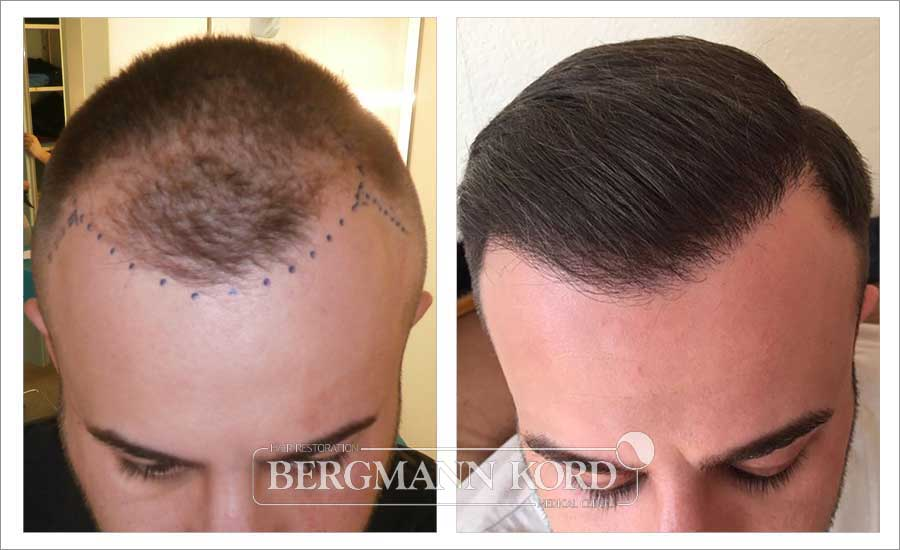 metamosxefsi-malliwn-fue-hair-clinic-home-page-photo-prin-meta-016